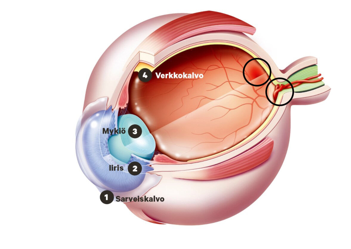 Silmän rakenne